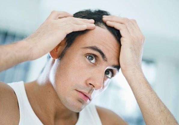 7 nguyên nhân gây hói đầu sớm