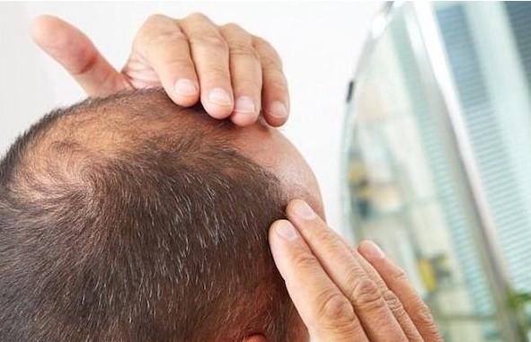 bệnh lý tim mạch gây rụng tóc