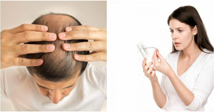 bệnh rụng tóc thường găp ở cả nam và nữ