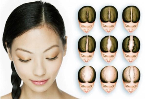 Biểu hiện hói đầu ở nữ giới