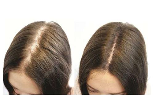 Các biện pháp khắc phục hói đầu ở phụ nữ