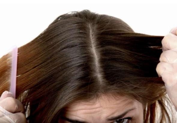 Cách trị da đầu nhờn tại nhà