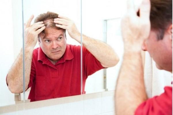 di truyền gây rụng tóc