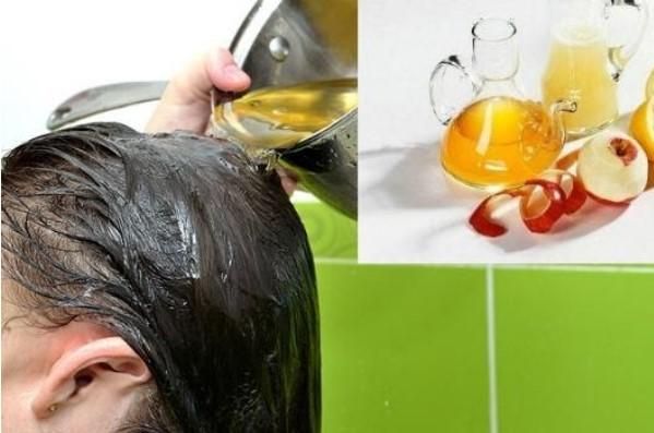 giấm táo trị da đầu nhờn