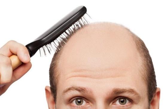 Nguyên nhân gây ra hói đỉnh đầu ở nam giới