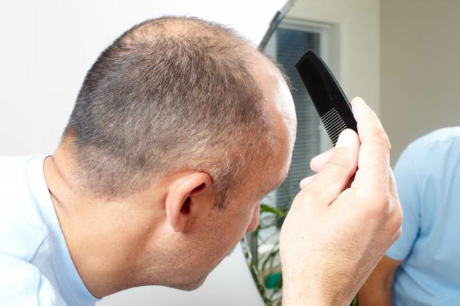 Người lớn tuổi thường bị rụng tóc do nhiều nguyên nhân khác nhau