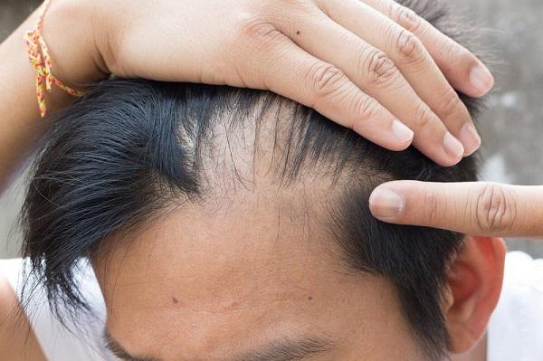 Nguyên nhân hói đầu
