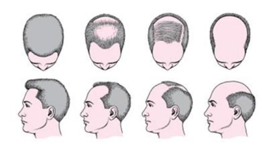 Những dấu hiệu hói đầu ở nam giới