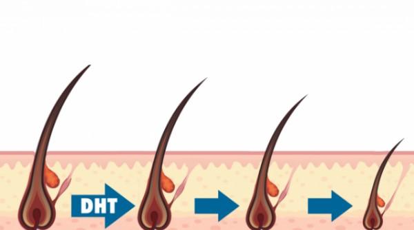 Rối loạn Hormone gây teo chân tóc ở Nam