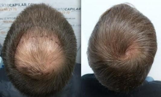 Rối loạn nội tiết tô gây ra hói ở đỉnh đầu nam
