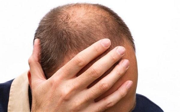 Rụng tóc hói đầu phải làm sao?