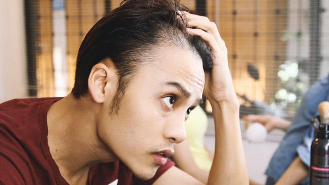 Rụng tóc ở nam tuổi 20