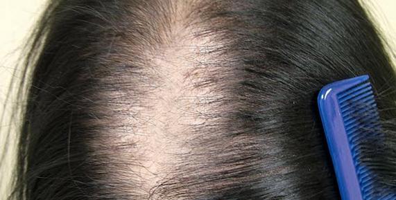 rụng tóc từng mảng sau sinh
