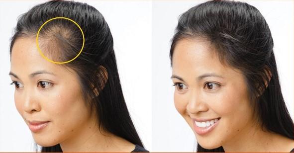 Sủ dụng các phương pháp trị hói đầu đùng cách