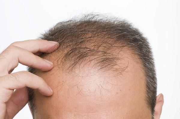 tâm lý căng thẳng gây rụng tóc