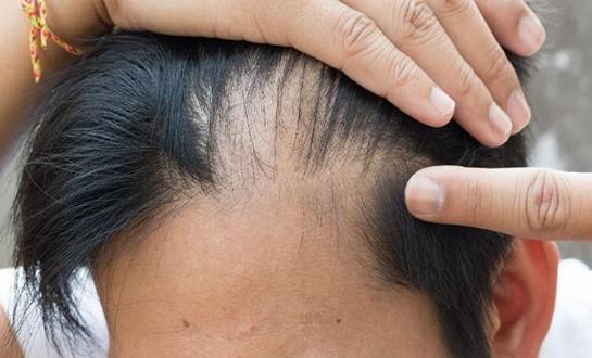 Tâm lý không tốt gây rụng tóc