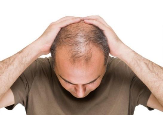 Thói quen xấu gây ra rụng tóc hói đỉnh đầu nam