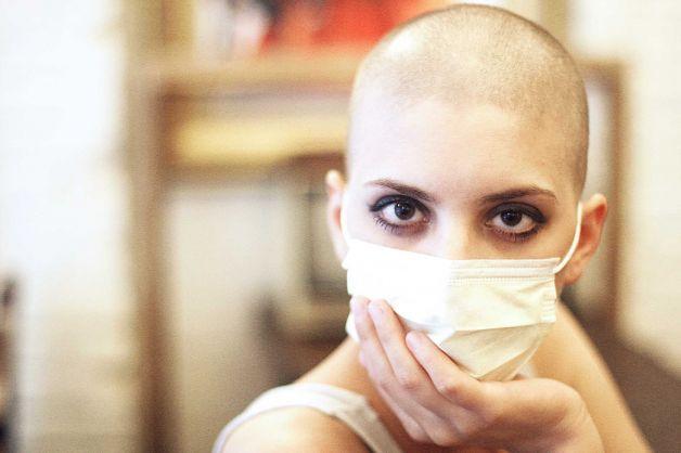 Rụng tóc sẽ kết thúc sau quá trình xạ trị ung thư