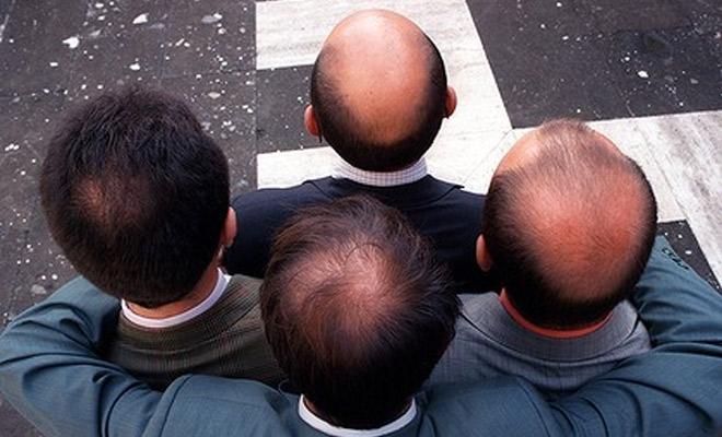 Yếu tố di truyền dẫn đến rụng tóc