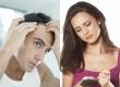 Những ai nên dùng viên uống dưỡng tóc Green Hair Hoa Sen?
