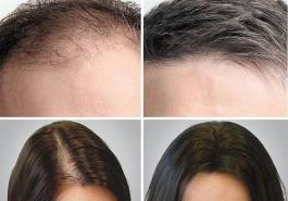 Làm sao để ngăn rụng tóc hiệu quả nhất?