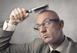 Hói đầu có chữa được không? Kinh nghiệm chữa hói đầu hiệu quả.