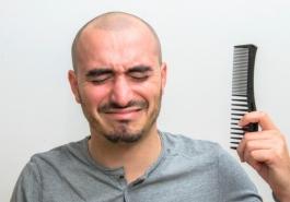 Hói đầu chỉ báo nguy cơ bệnh tim