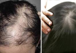 Top 5 loại thuốc kích thích mọc tóc tốt nhất hiện nay