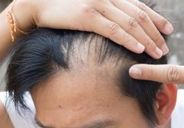 Nguyên nhân hói đầu và cách điều trị hiệu quả