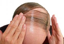 Truy tìm thủ phạm gây rụng tóc ở phụ nữ và nam giới