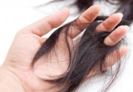 Rụng tóc quá nhiều ở nữ và cách khắc phục hiệu quả nhất