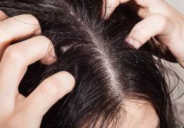 5 cách chữa dứt điểm chứng rụng tóc cho da đầu dầu