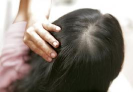 Nguyên nhân và cách điều trị tóc mọc thưa ở đỉnh đầu