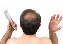 Rụng tóc lâu năm, làm sao để chữa khỏi?