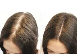 Bí quyết chọn sản phẩm kích thích mọc tóc an toàn hiệu quả