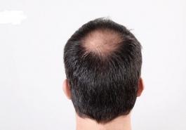 Nguyên nhân và cách trị hói đỉnh đầu nam