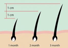 Cách trị rụng tóc hiệu quả nhất - Nên lấy nang tóc làm gốc