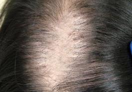 Giải pháp nào dành cho rụng tóc từng mảng sau sinh?