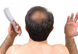 Cách chữa rụng tóc ở đỉnh đầu hiệu quả
