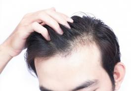 Những nguyên nhân gây rụng tóc ở nam giới và cách chữa trị