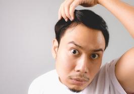 5 cách chữa hói đầu tại nhà hiệu quả nhất