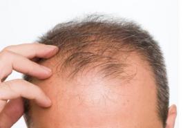 Rụng tóc nhiều ở nam giới là bệnh gì và các giải pháp chữa trị