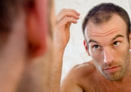 Đi tìm vị trí dễ bị hói đầu ở nam giới và nữ giới