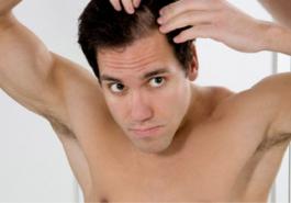 Tóc rụng nhiều khiến phong độ phái mạnh giảm sút
