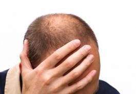 Vì sao rụng tóc do di truyền chỉ gặp ở nam giới?