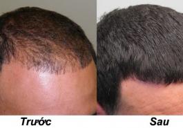 Tổng hợp phương pháp chữa bệnh rụng tóc hói đầu một cách triệt để