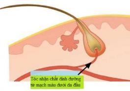 Rụng tóc – dấu hiệu của chứng thiếu máu