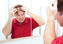 Tâm lý tự ti của người bị rụng tóc, hói đầu