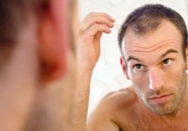 Rụng tóc – Những điều cần phải biết