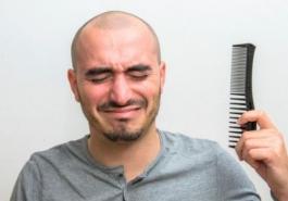 Hói đầu di truyền có chữa được không?